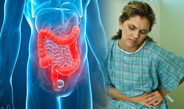 Ulcerative-colitis-symptoms-Signs-of-the-disease-800188